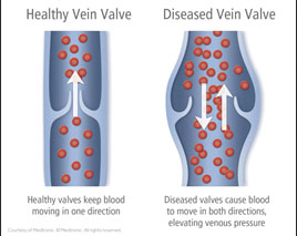 healthy veins vs diseased veins