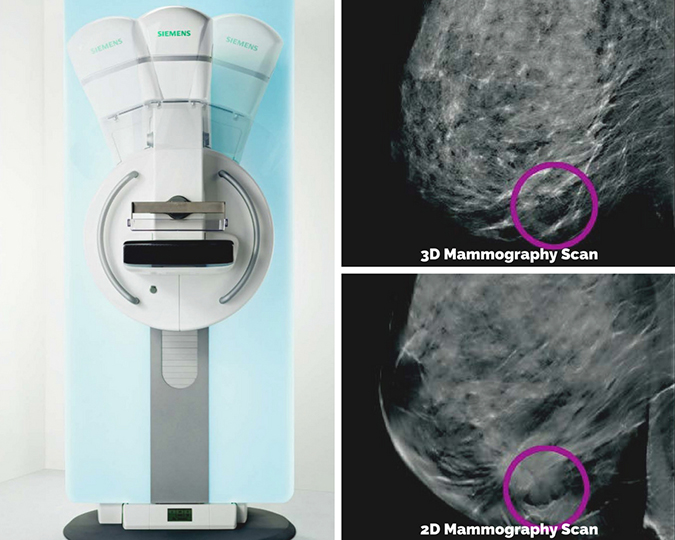 CCH 3D Mammography at CCMH Radiology in Gillette, Wyoming